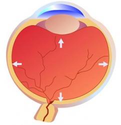 Глаукома статистика